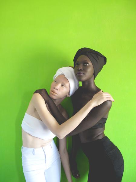 albinos-melanine-art-artiste-ambrecardinal-blancdebene-mode-directionartistique